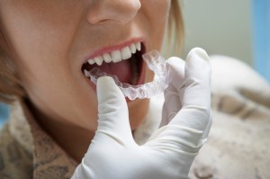 How Long Does Invisalign® Take? - BracesOrInvisalign.com
